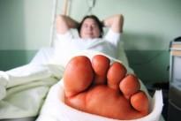lynn_broken_leg.jpg